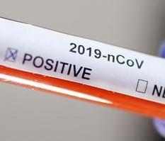 Перший тест на коронавірус, який можна самостійно зробити вдома